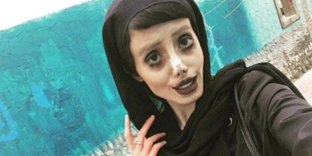 """Inquietantes fotos: """"Angelina Jolie zombie"""" comparte imágenes de su última cirugía  y su rostro luce cada vez más extraño"""