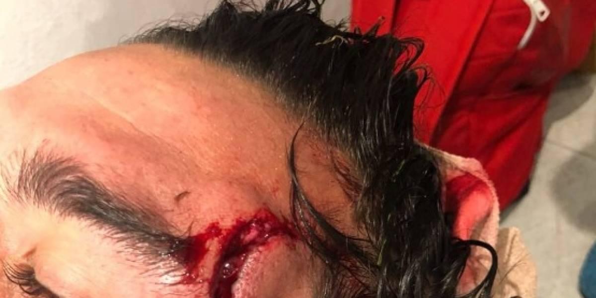 FOTOS: Jugador del Atlas muestra terrible herida que sufrió ante Morelia