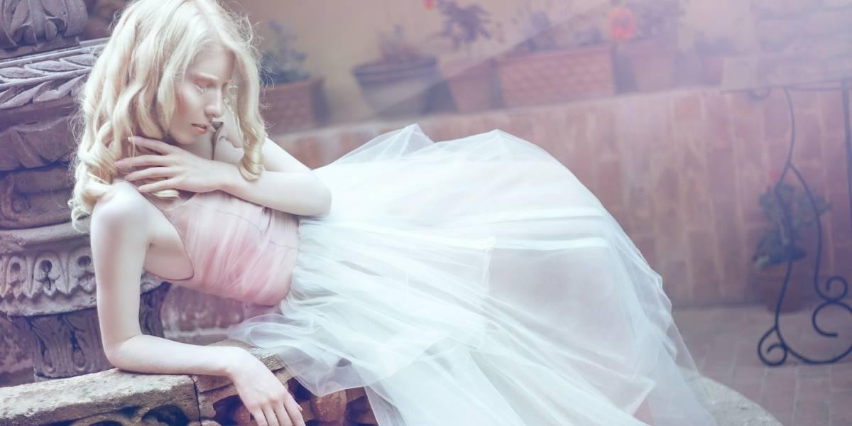 Modelo albina desafía al mundo de la moda