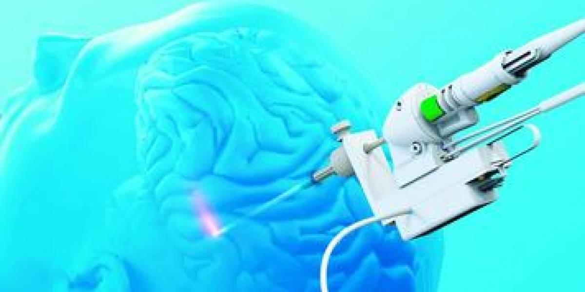 SureFire: nuevo método láser para tumores cerebrales y epilepsia inoperables