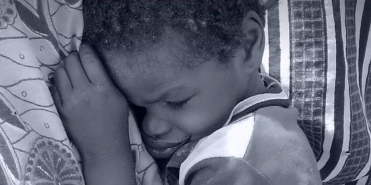 Noma: la extraña enfermedad que devora la cara de los niños