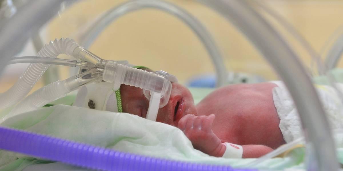 Bebé recién nacido murió por quemaduras que sufrió dentro de la incubadora