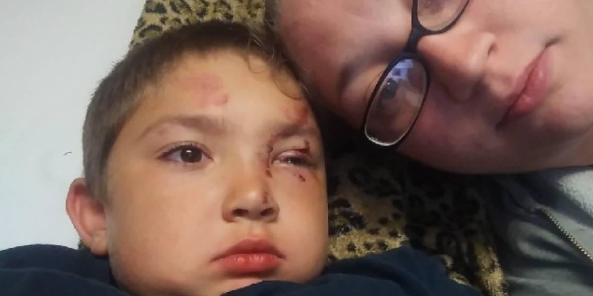 Niño autista terminó hospitalizado luego de defender a su amigo del bullying