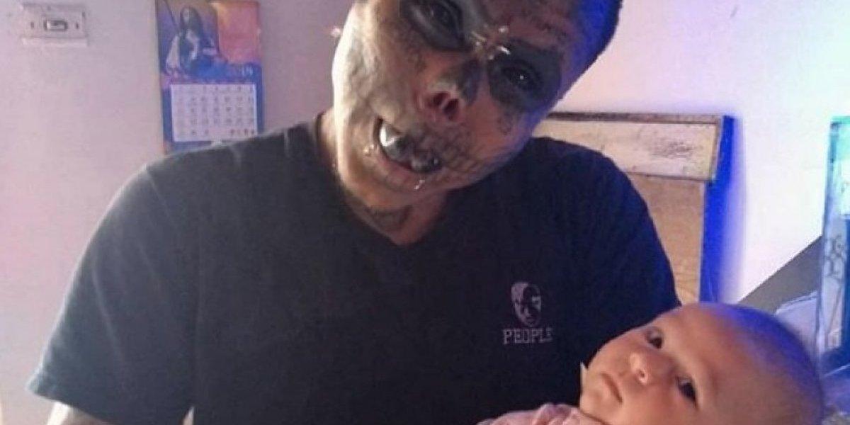 Hombre se mutila las orejas y nariz para cumplir su sueño de parecer calavera viviente