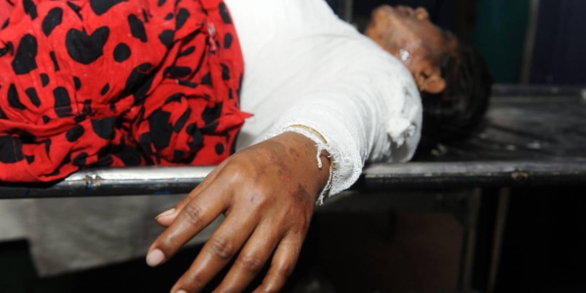Mujer fue atacada con ácido por su cuñada