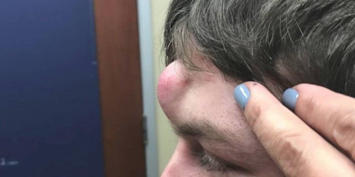 Por esto amamos la ciencia: investigadores crean vacuna que podría terminar definitivamente con el acné