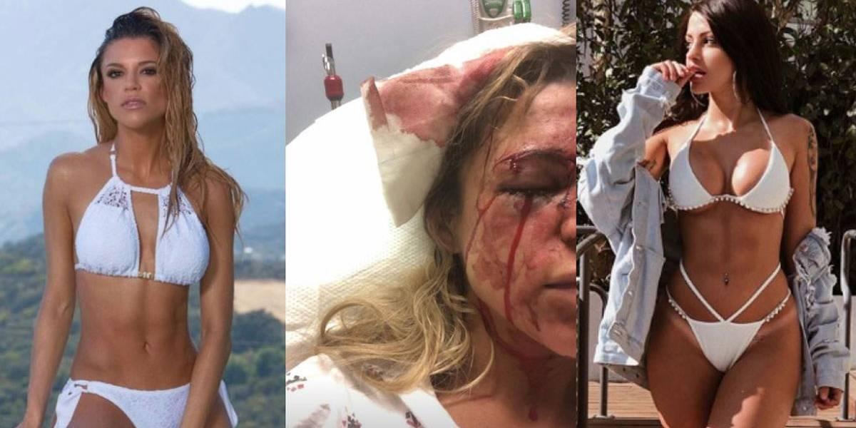 Duda Castro é acusada de quebrar garrafa em rosto de amiga de Biel