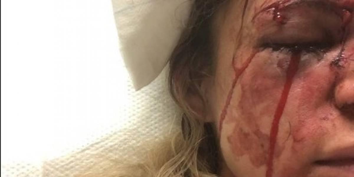 Médicos descartam cirurgia em paisagista agredida por rapaz no Rio