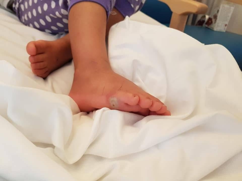 Una pequeña adquirió una infección tras probarse zapatos sin medias