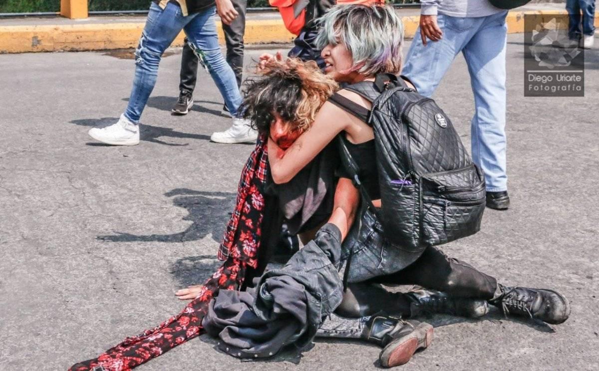 Joel Meza fue agredido el pasado lunes en CU. Foto: Diego Uriarte.