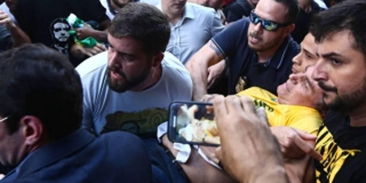Bolsonaro está consciente e em boas condições clínicas, diz hospital