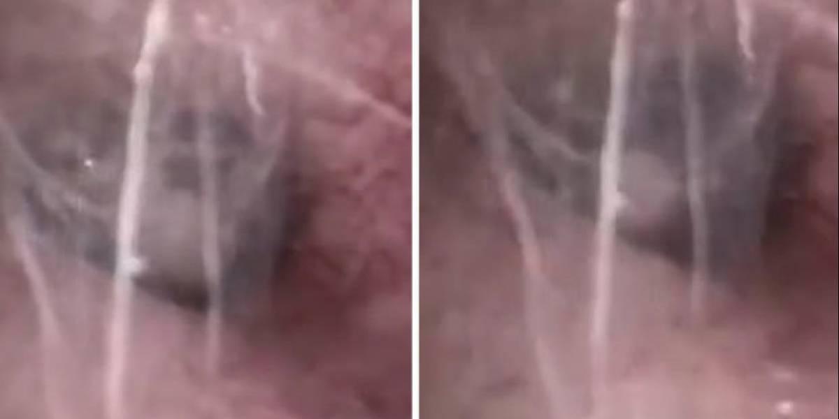 [Video] Insólito cuadro médico: Araña se metió en el oído de un paciente y tejió una telaraña