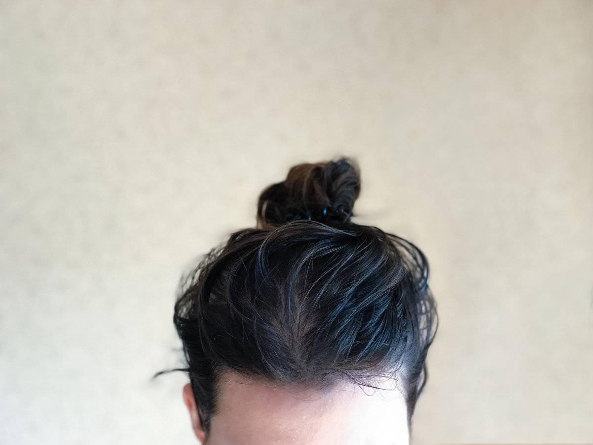 cabello graso