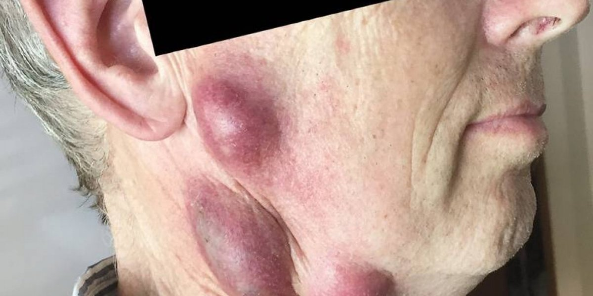 Una infección potencialmente mortal: le aparecieron unos grandes bultos en el cuello y su gato habría sido el responsable de contagiarle una rara enfermedad