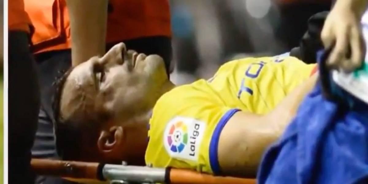 VIDEO: Terrible golpe provoca triple fractura a futbolista