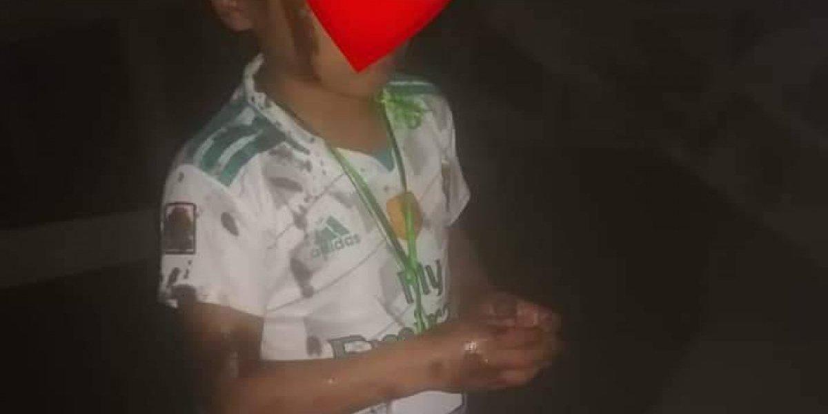 EN IMÁGENES. Denuncian a hombres que lanzaron aceite quemado a niños con antorchas