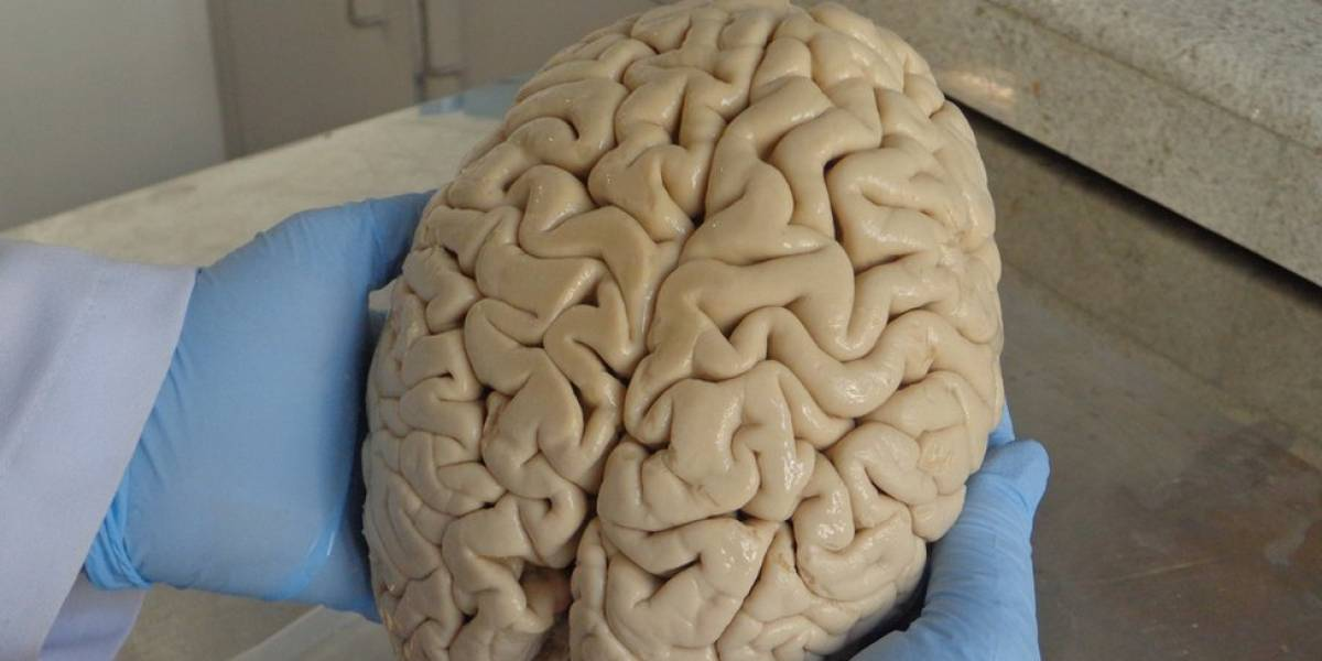 Como cérebros doados no Brasil estão ajudando a descobrir origem do Mal de Alzheimer