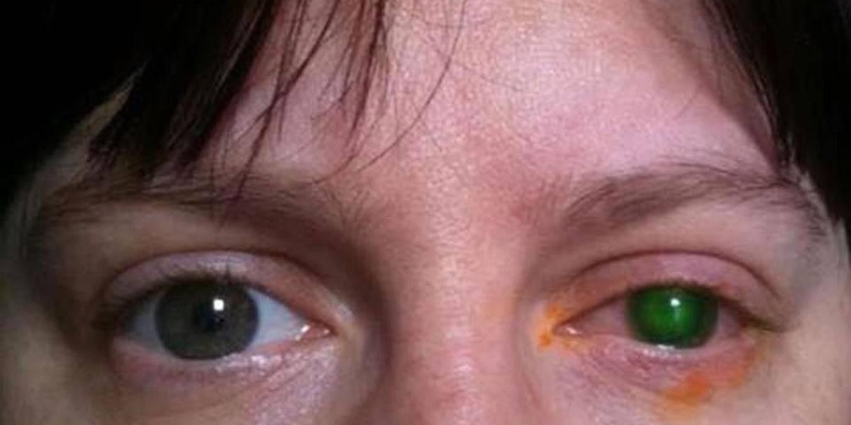 63bde3d00abf7 Mulher fica cega após nadar em piscina com lente de contato   Metro ...