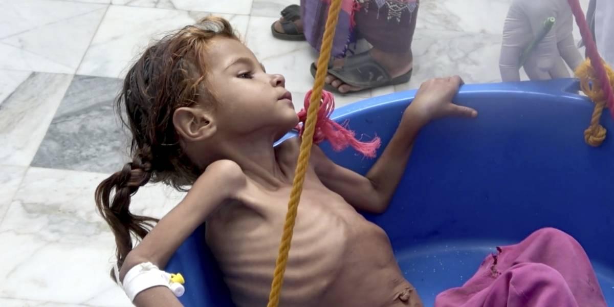 ¿Cuantos niños están a punto de morir en Yemen por la hambruna?