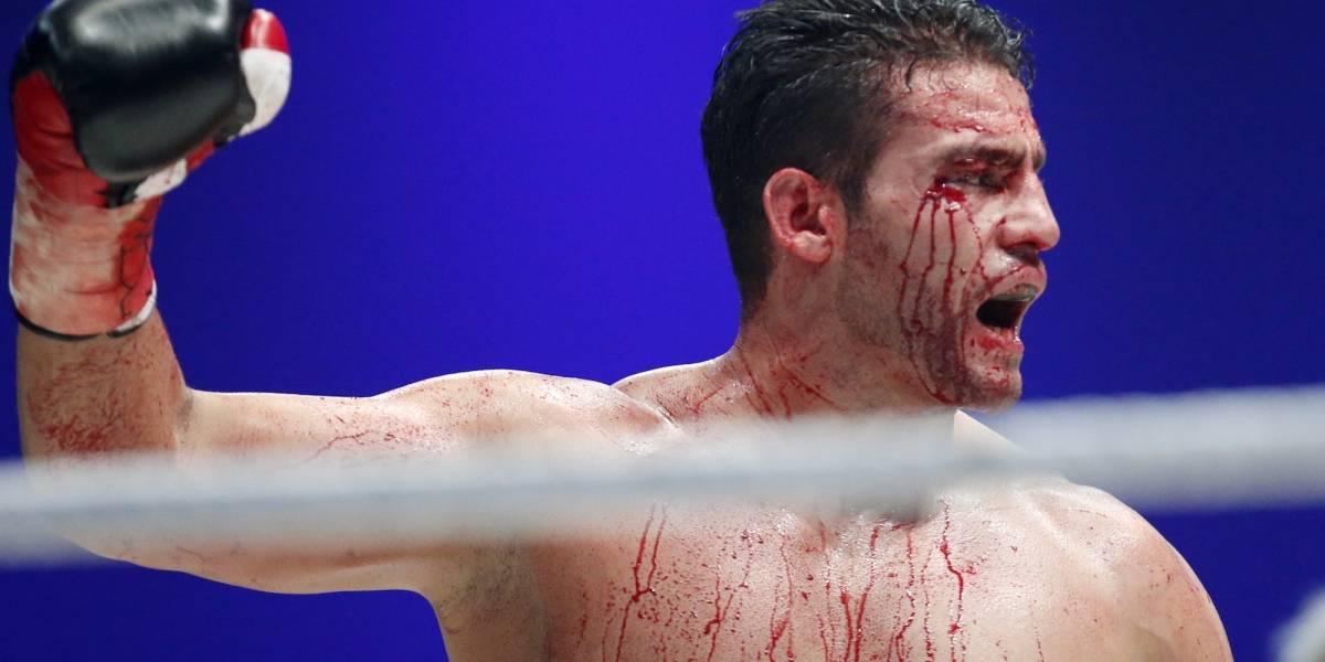 Suspenden pelea de box por positivo de doping de un pugilista
