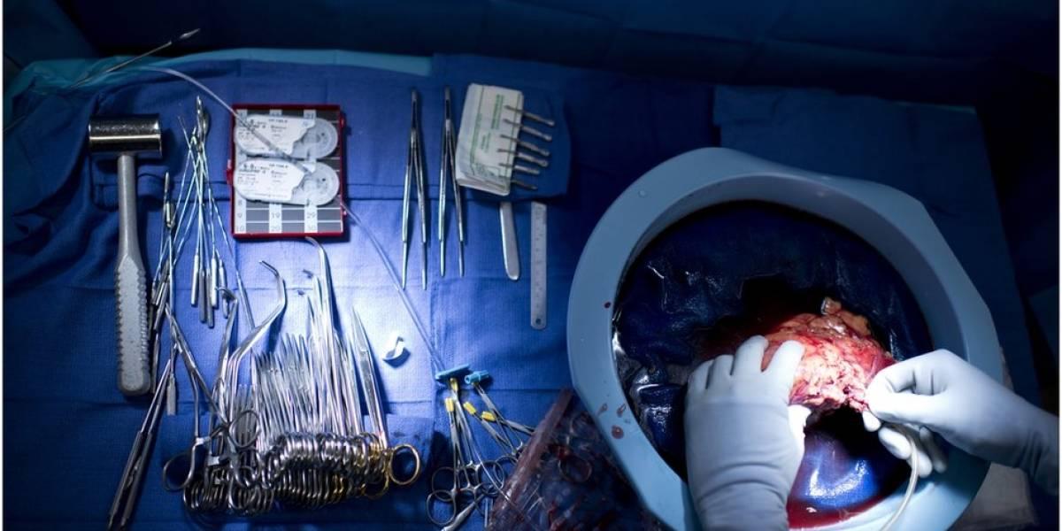 El extraño caso de los 4 pacientes que desarrollaron cáncer después de recibir órganos de la misma donante