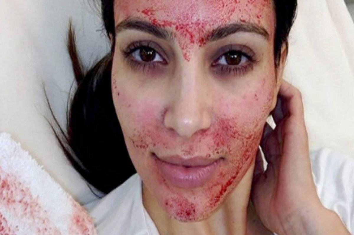 Kim Kardashian Facial Vampiro
