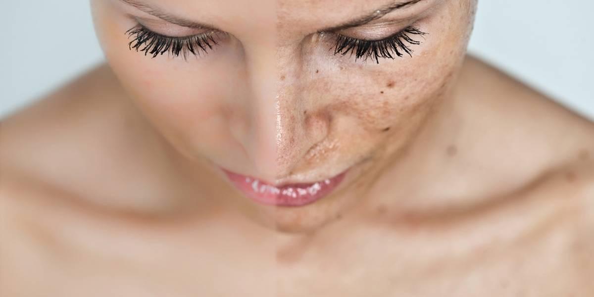 Los `faciales de vampiro´podrían estar causando VIH
