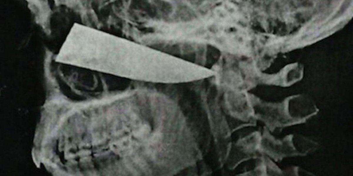 El caso que sorprende a la comunidad médica: hombre salió ileso tras llevar cuchillo clavado en su cabeza durante cuatro días