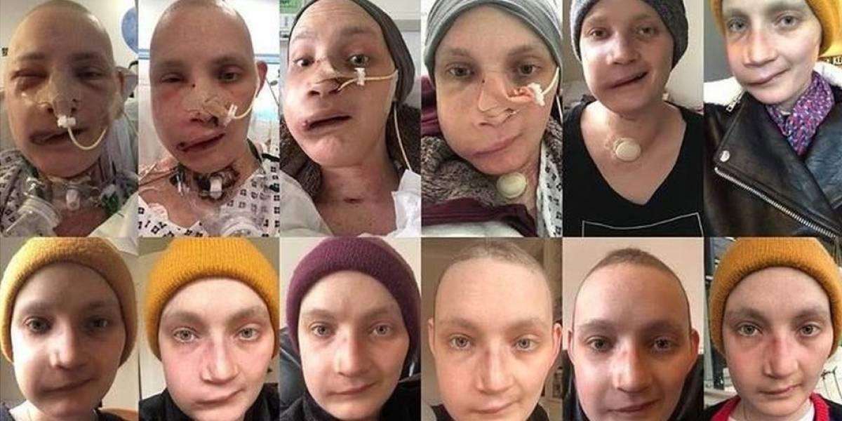 Após reconstrução facial, jovem faz uma selfie por dia para registrar recuperação