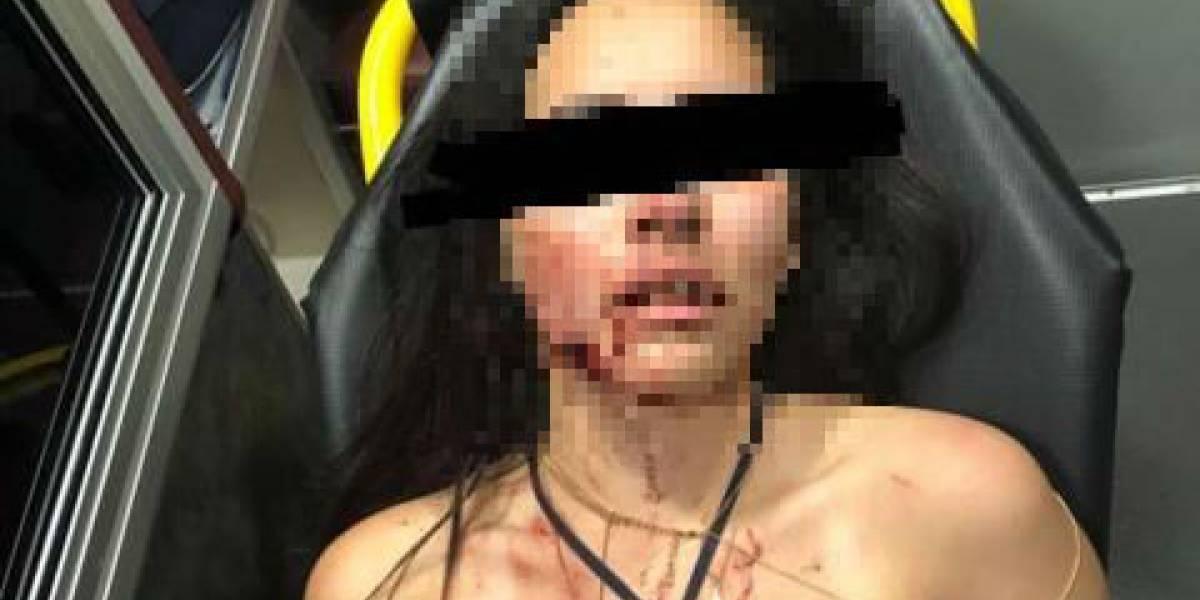Karen fue mordida por su novio y ahora teme por su vida