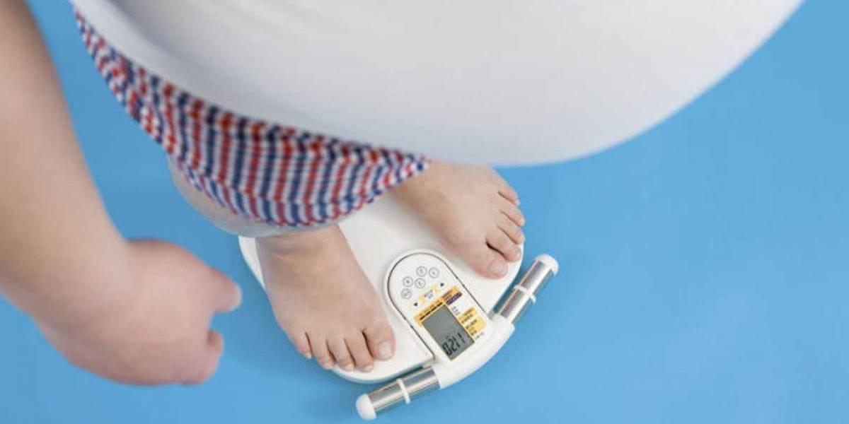 Organización ciudadana de obesos mórbidos pide aumento de cirugías en el sistema público