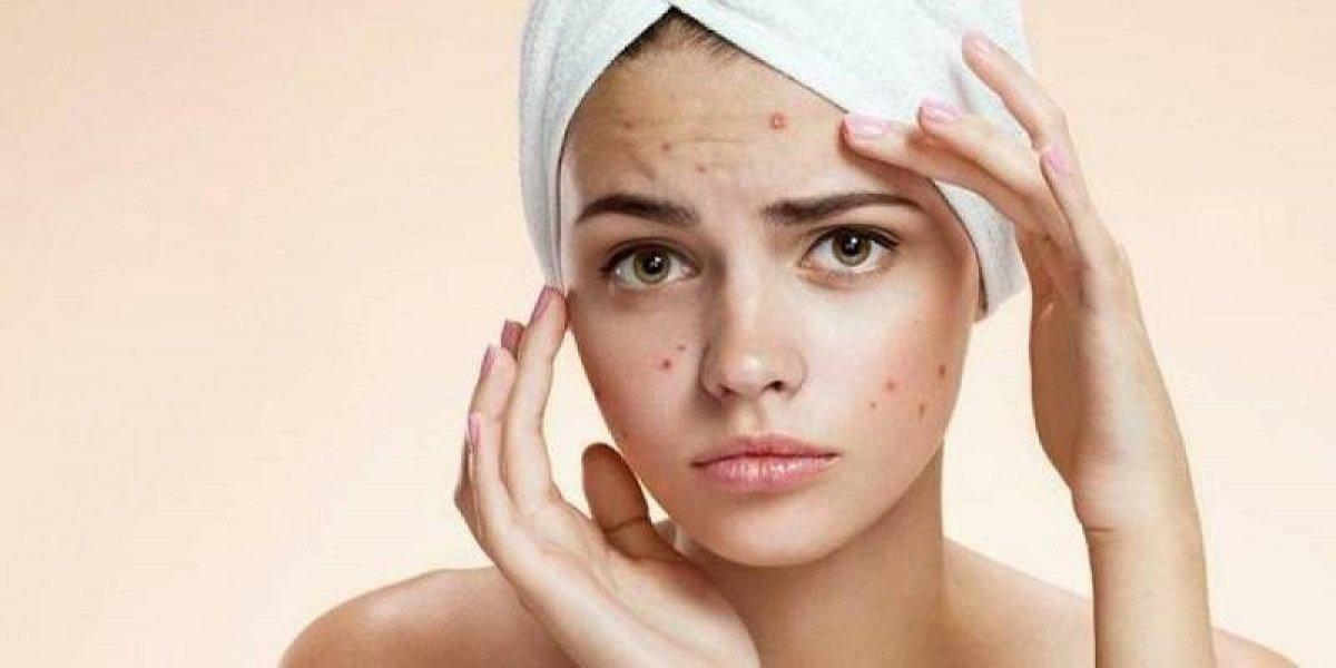 Erradica de tu vida estos 7 hábitos que empeoran tu acné