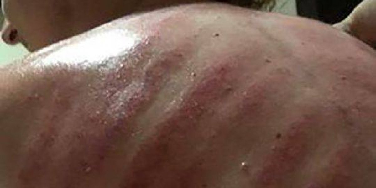 Turista aceita massagem 'dragão vermelho' sem saber o que é e se assusta com o resultado