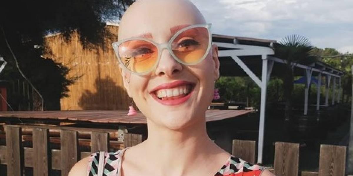 """Quedó sin cabello por un trastorno compulsivo: modelo supera la calvicie y sorprende con desnudos para """"inspirar"""" a otras mujeres"""