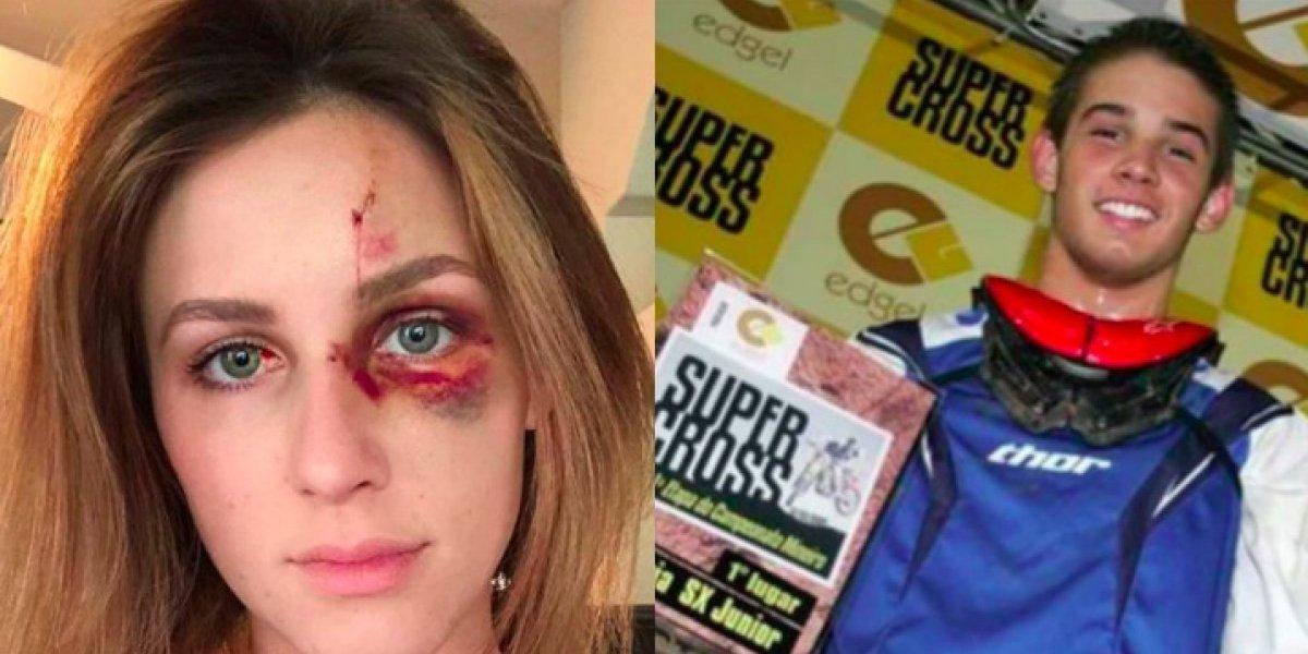 Ex novia de campeón de motocross muestra su rostro luego de recibir una golpiza del piloto