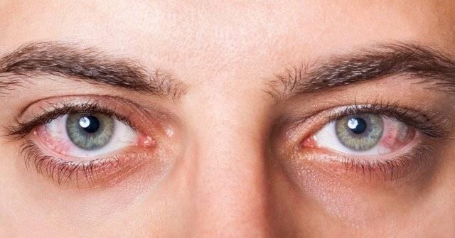 ojos-rojos