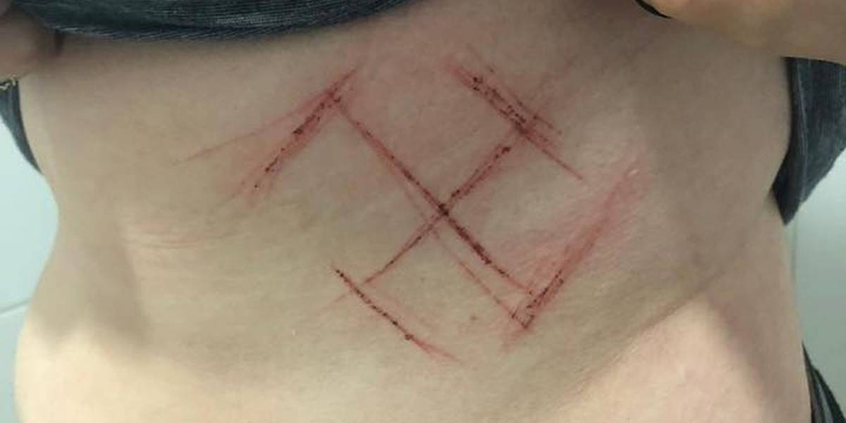 Jovem tem barriga marcada com canivete por usar camiseta escrito 'Ele Não'