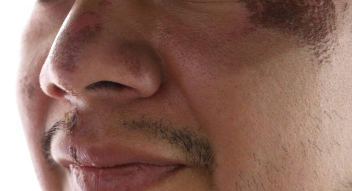 Fue drogado con una bebida y luego asaltado. Foto: Carmen Ortega
