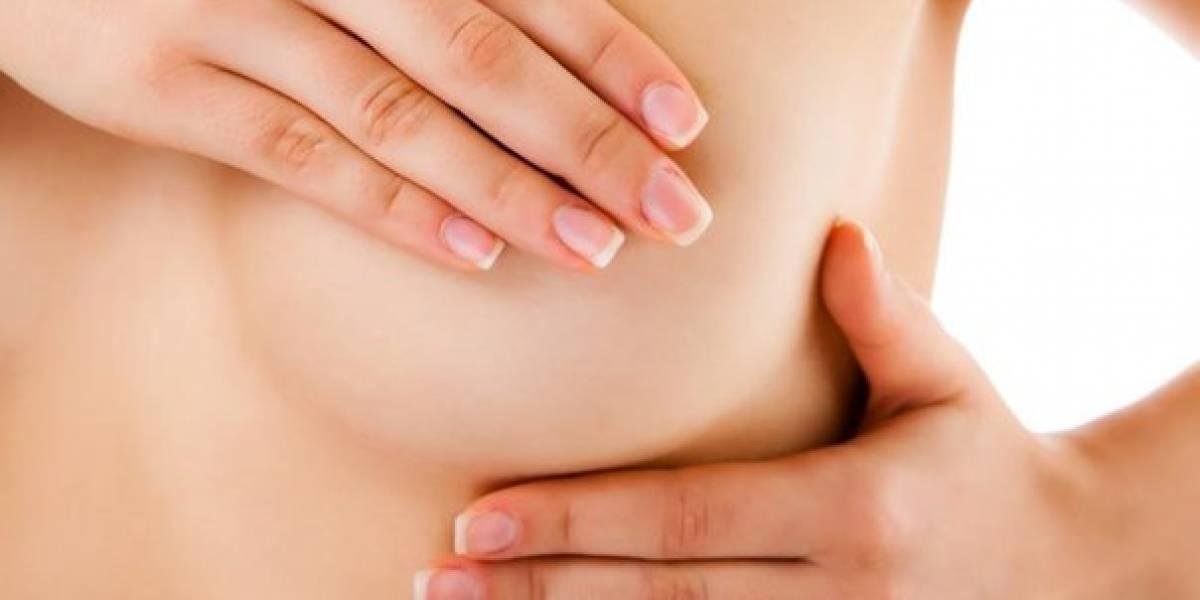 ¿Sabes cómo se presenta el cáncer de mama?
