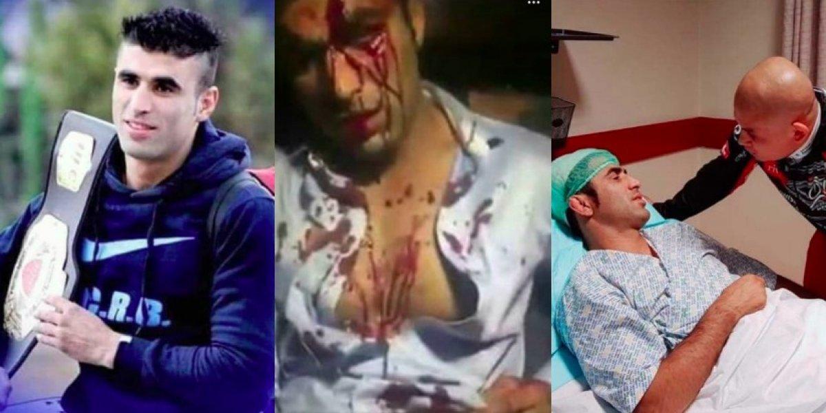 Campeón afgano de lucha MMA recibió varias puñaladas en la cabeza