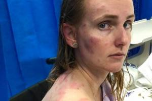 'Mal consegui pensar na dor': Mãe vira escudo humano para proteger filha de tempestade