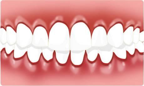 gingivitis-588917b9c6876c3c54cb5cc1000d5cb7.jpg