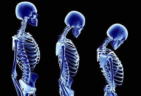 princrmphotoofstagesofosteoporosis-98540a95c6eac0792c5e8fec34b65901.jpg