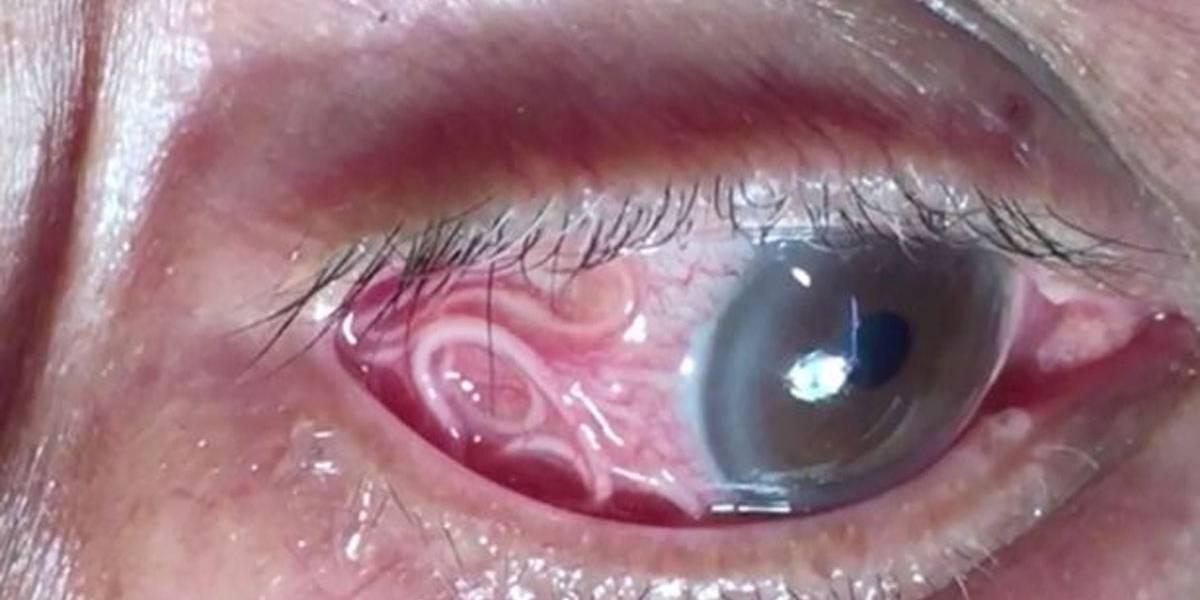 Médico retira verme gigante de olho de paciente