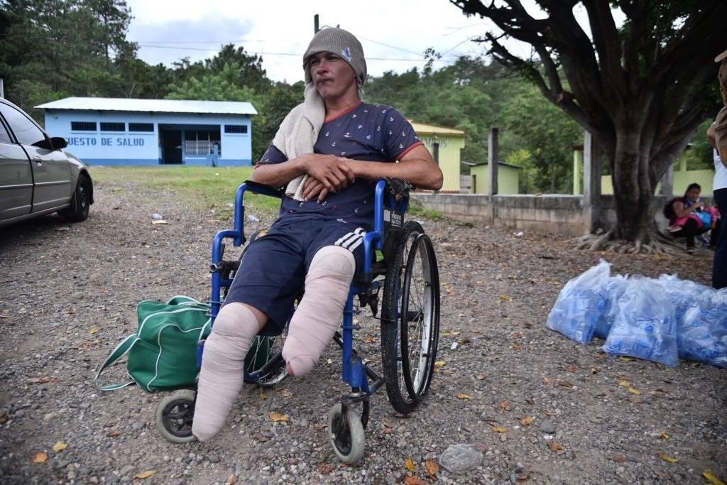 Nery Maldonado perdió sus pies