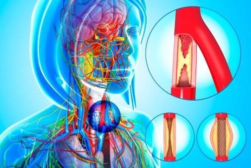 Imagen ilustrativa esclerosis múltiple Foto: Getty Images
