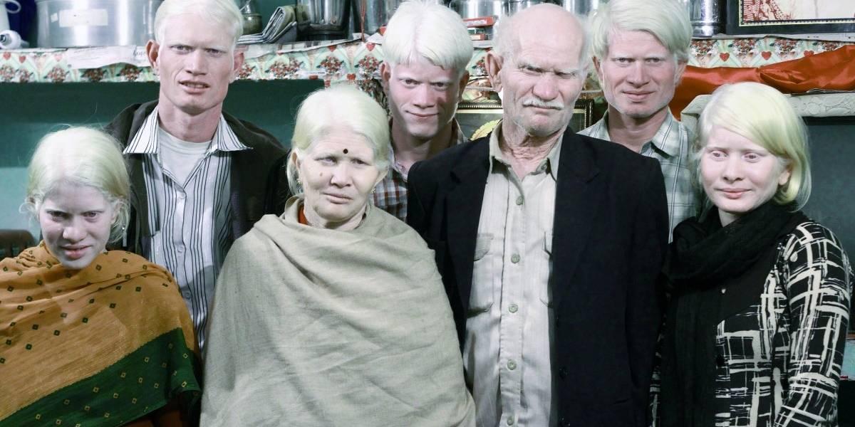 Histórico: Realizan el primer censo digital de albinos en Chile