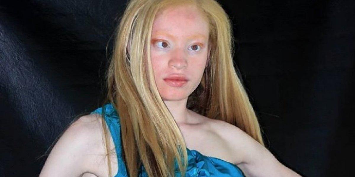 Coronan primera miss con albinismo