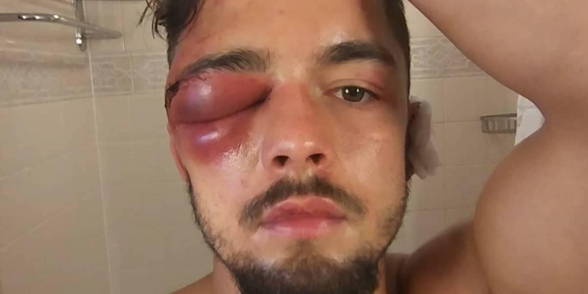 Boxeador muestra impactante lesión en el ojo
