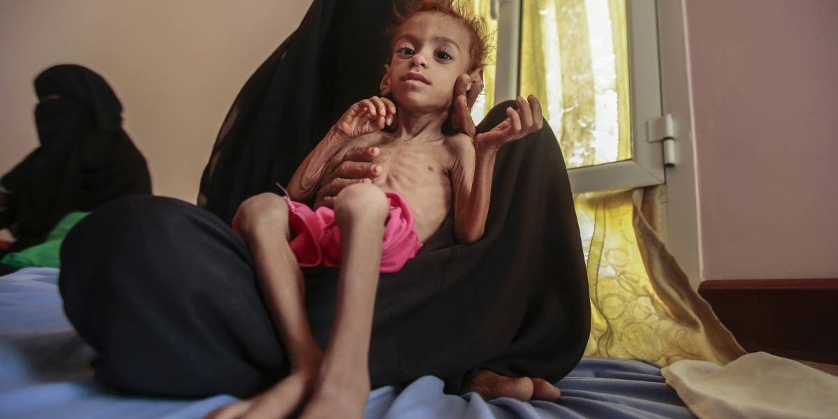 2 millones de madres en peligro de morir de hambre en Yemen: ONU